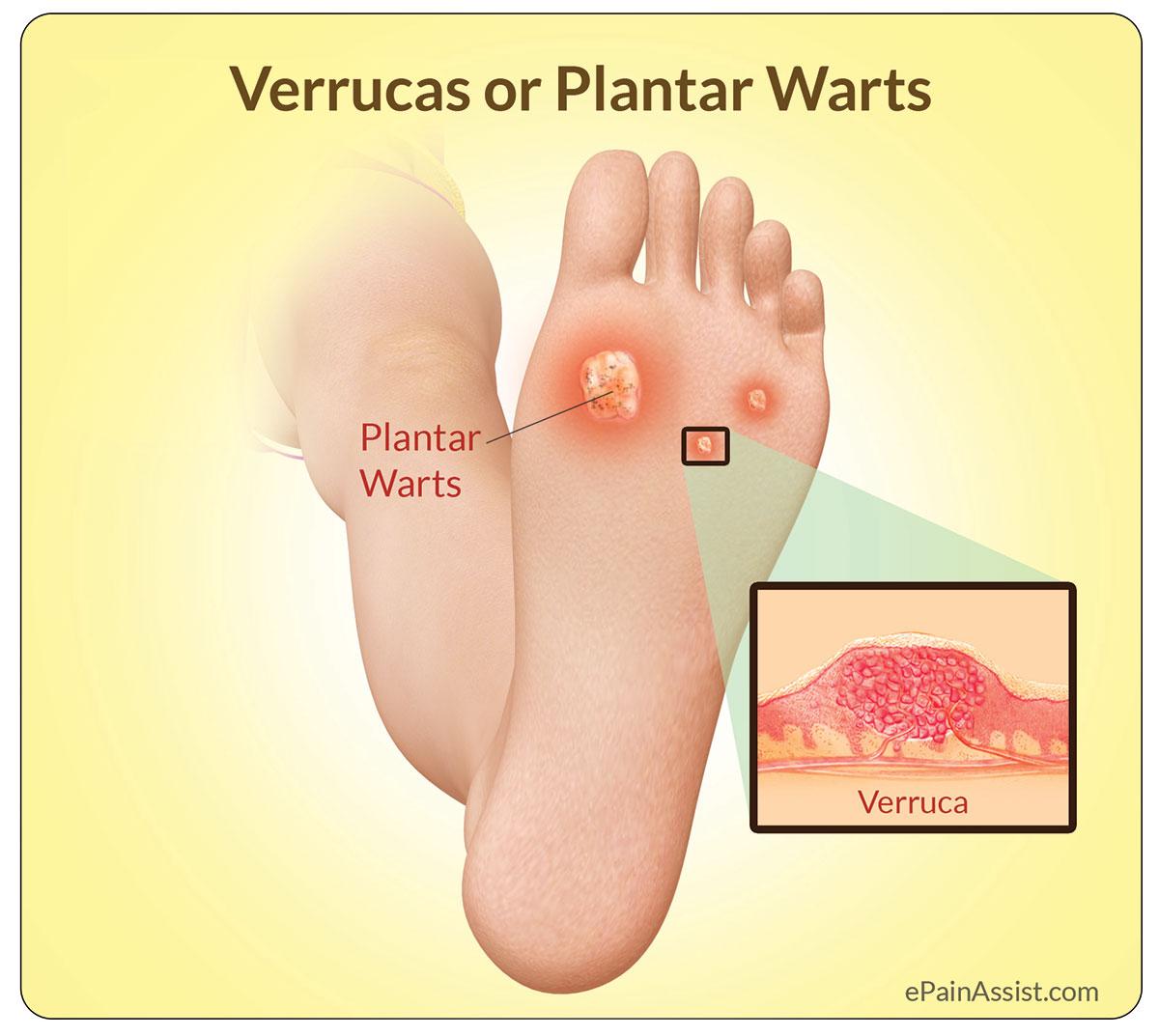 verruca swollen foot)