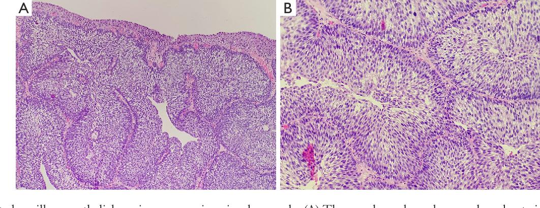bladder inverted papilloma follow up)