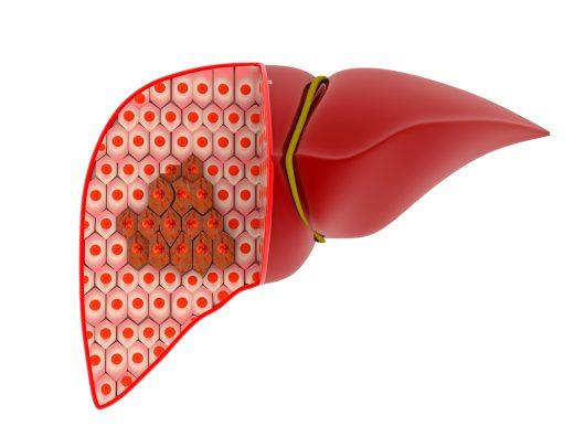 CHRONIC HEPATITIS B VIRUS INFECTIONS - The Infectious Etiology of Chronic Diseases - NCBI Bookshelf