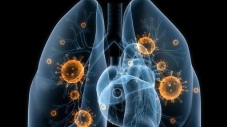 cancerul de plamani recidiva