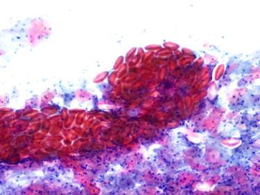 papilloma virus mode of transmission como eliminar los oxiuros con ajo