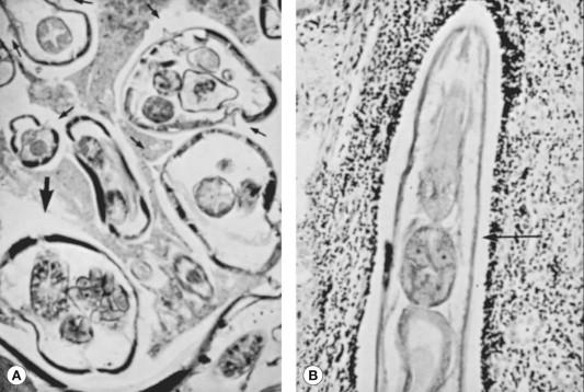 Cauze de sânge în fecale și boli majore legate - Articole