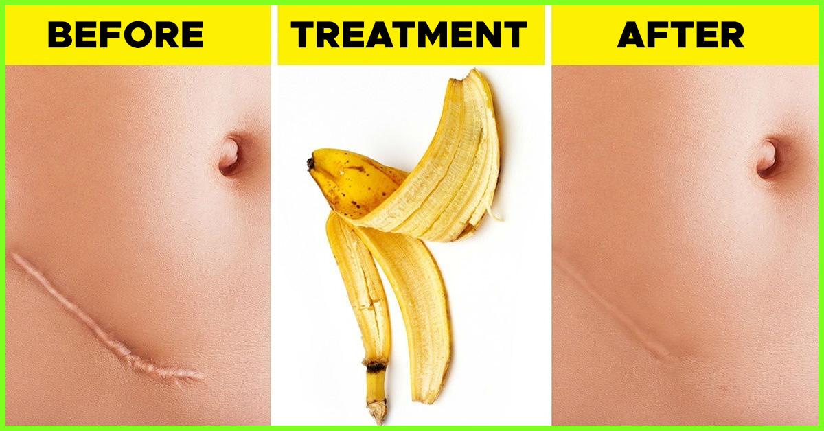 wart treatment banana peel