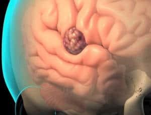 dosis albendazol para oxiuros nasal warts cancer
