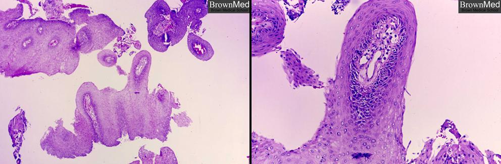 laryngeal squamous papillomas)