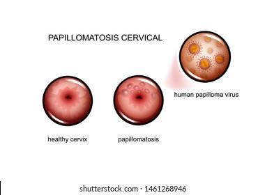 papillomatosis virus