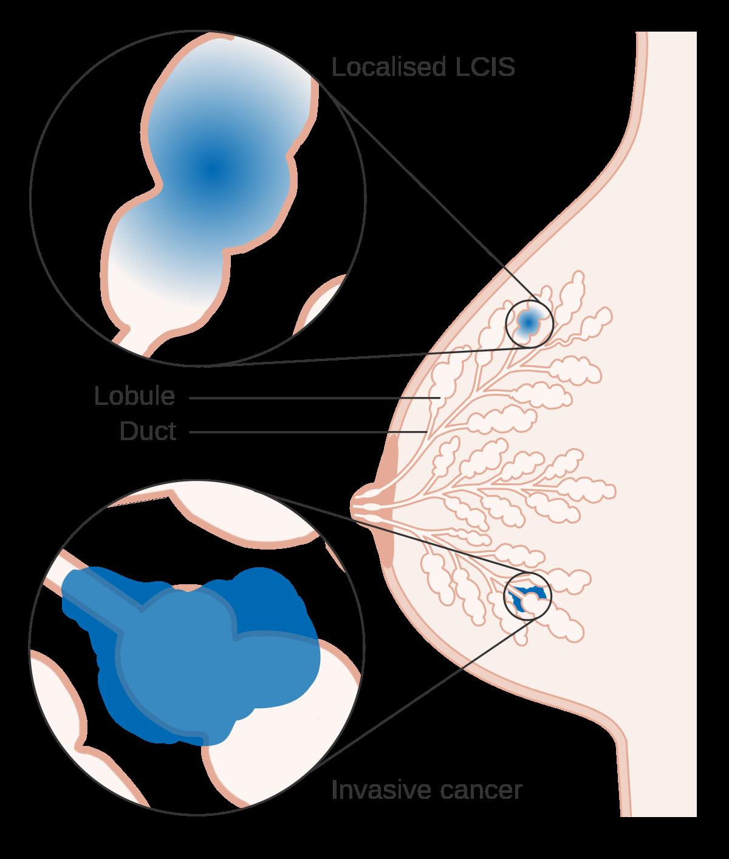 hx of breast papilloma icd 10