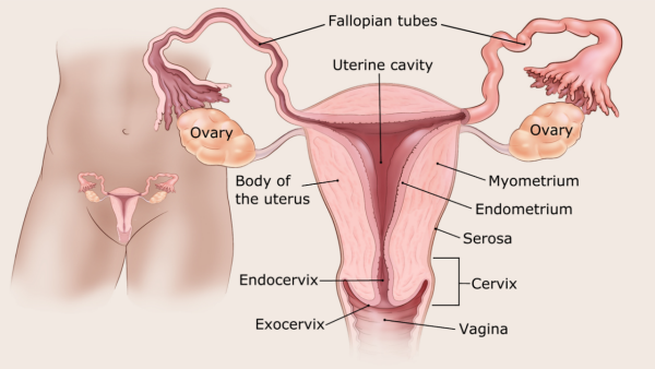 aggressive cancer in womb)