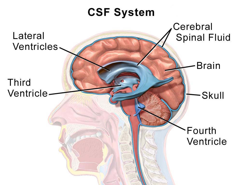 cancer in cerebral fluid)