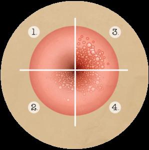 papillomavirus stade 1 que faire
