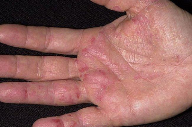 cancer de piele la maini
