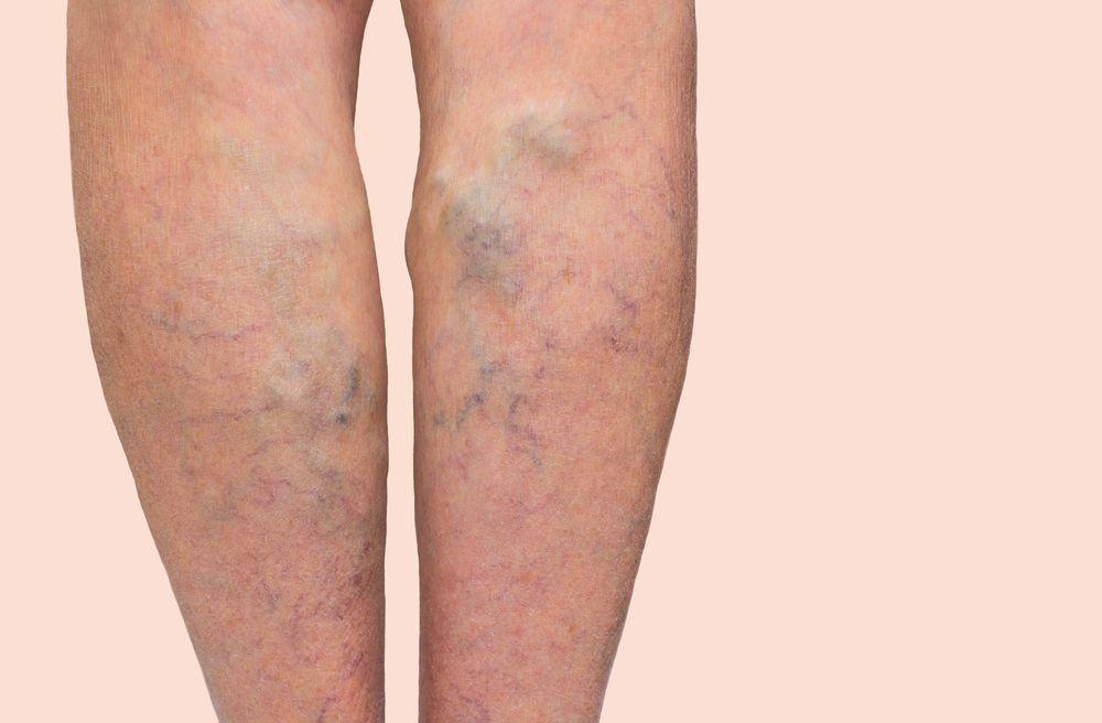 Ce este leucemia şi care este cel mai adecvat tratament al acestei maladii