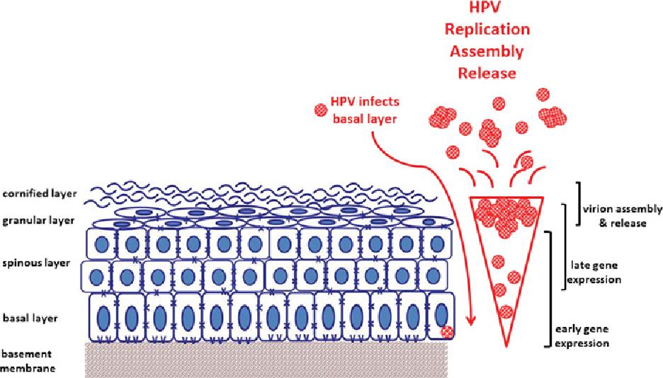 papillomavirus infection squamous cell