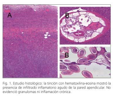 amoeba caracteristicas - Salud - asspub.ro