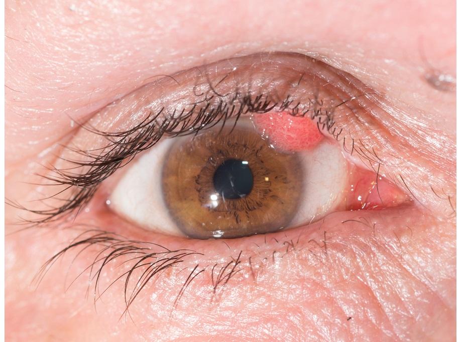 papilloma around eyes