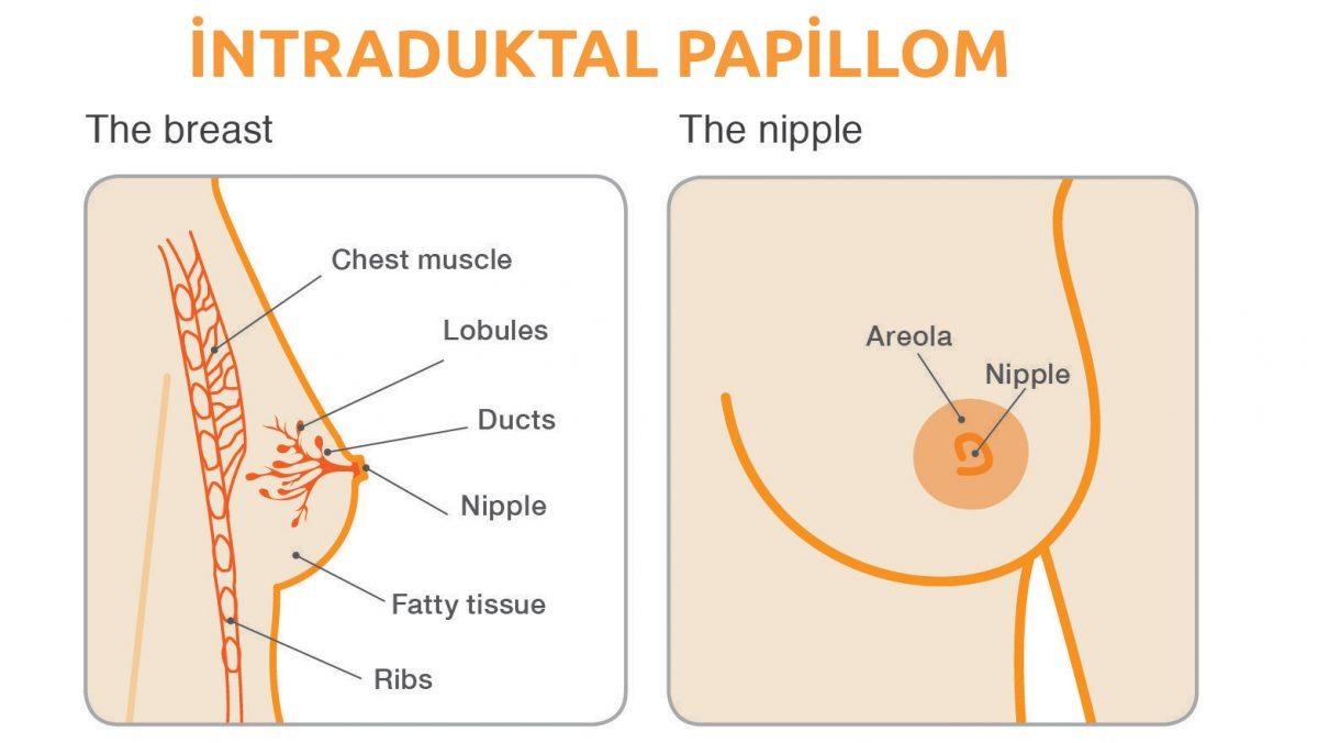 intraduktal papilloma tedavisi