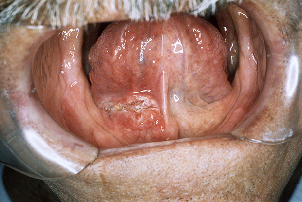 hpv-16 and oropharyngeal cancer