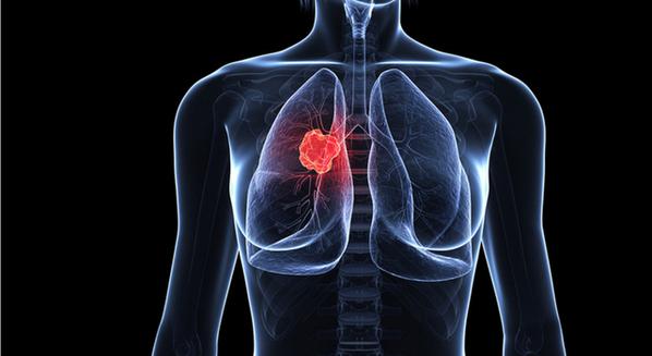 cancer pulmonar con metastasis)