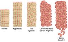 virus papiloma humano y preservativo viermi negrii in casa