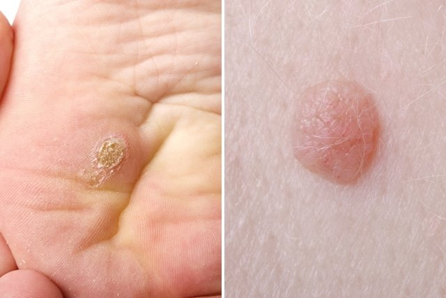 sintomas del virus papiloma humano)
