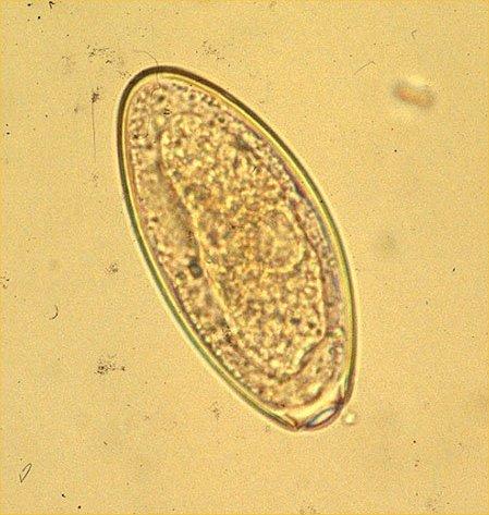 diagnosis of oxyuris equi)