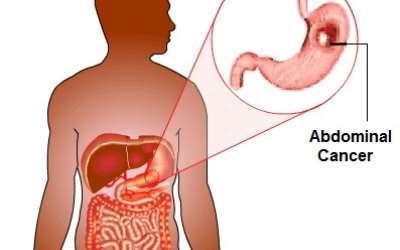 virus del papiloma sintomas en mujeres hpv warts lifespan