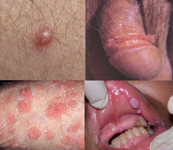 HPV genotipare-uretra - analiza medicala Synevo