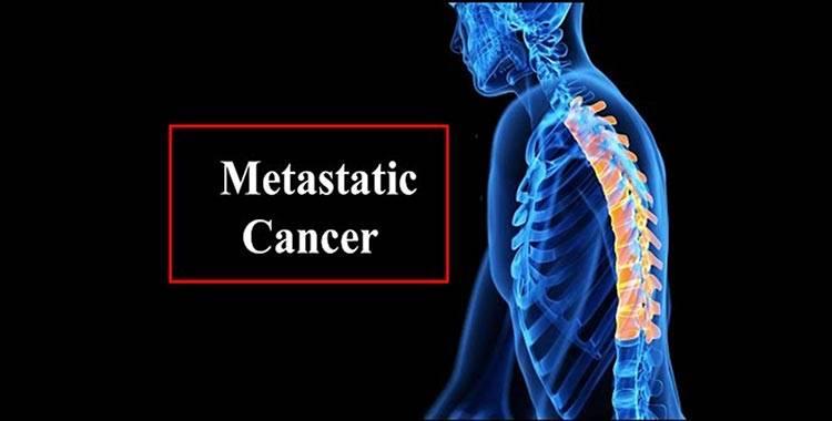 metastatic cancer how
