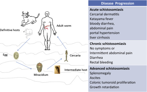 schistosomiasis symptoms ovarian cancer or pregnancy