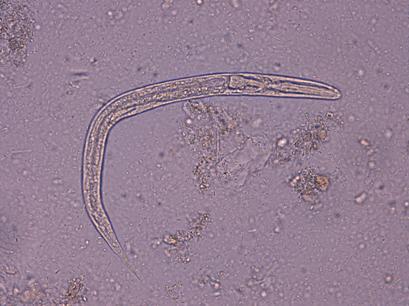 analize paraziti intestinali pret)