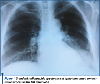 Cand este tusea un semn al cancerului pulmonar