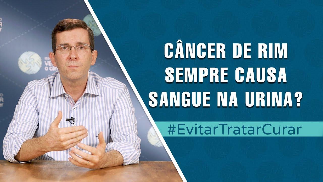uterine cancer liver metastases human papillomavirus pcr