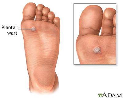 foot wart painful)
