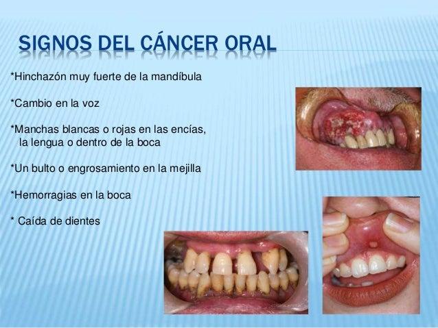 cancer bucal definicion