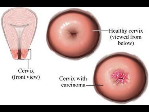cervical cancer kya hota hai)