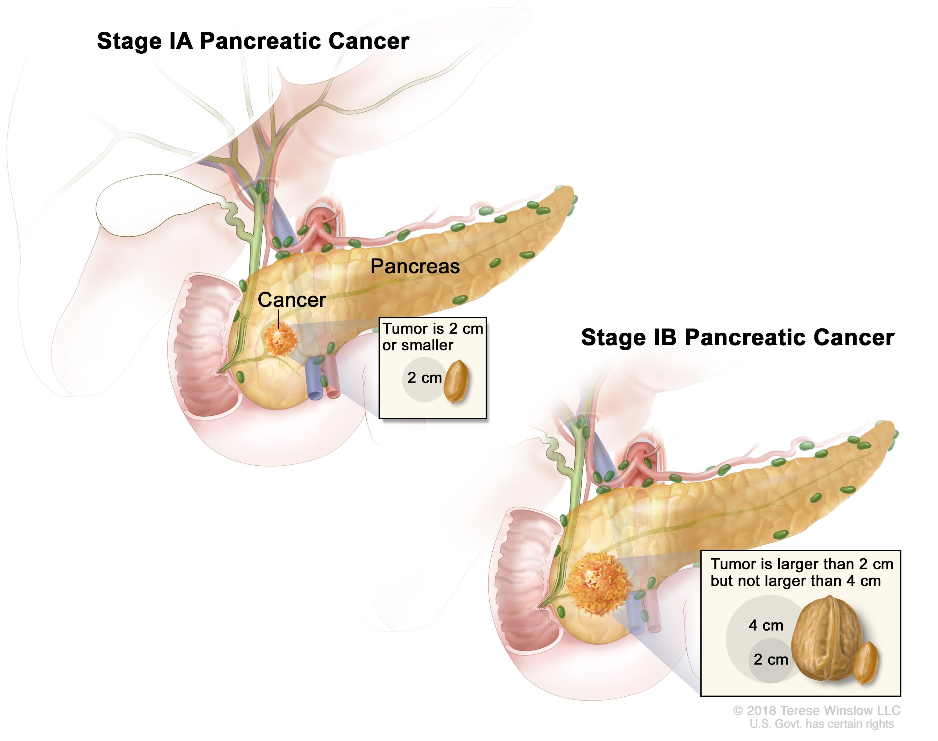 cancer pancreas stage 4)