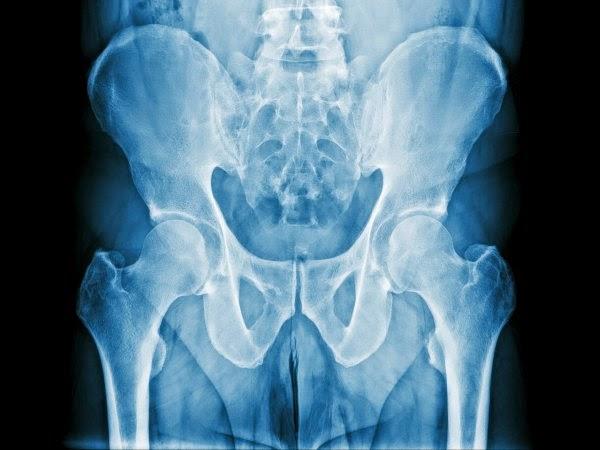 Curar prostatita cronica y