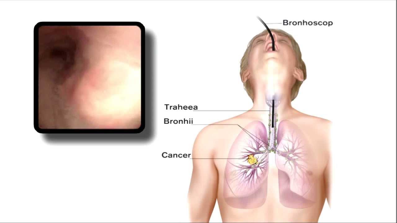 cancerul pulmonar operatii)