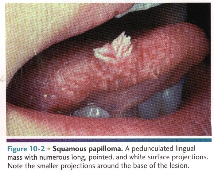 squamous cell papilloma and verruca vulgaris)