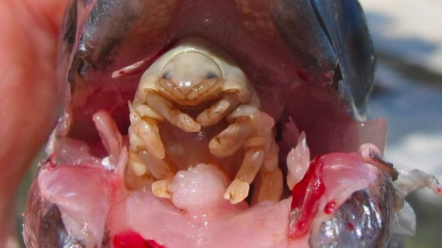 intraductal papilloma pictures cancer rectal metastaze