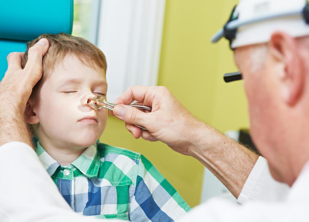 nasal warts cancer)