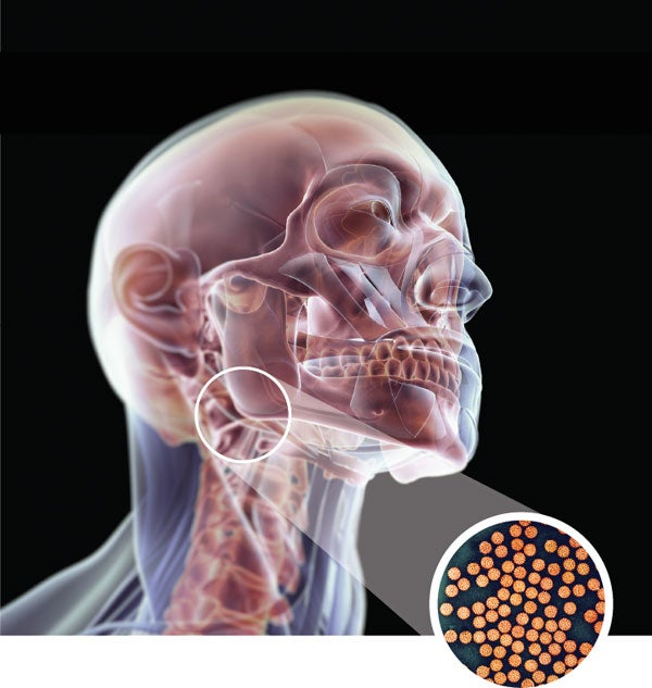 does hpv cause bone cancer