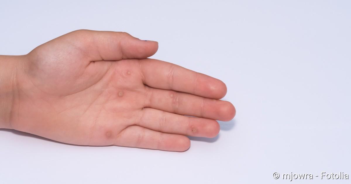hpv warzen an der hand