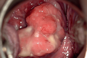 enceinte avec papillomavirus detoxifiere colon calivita
