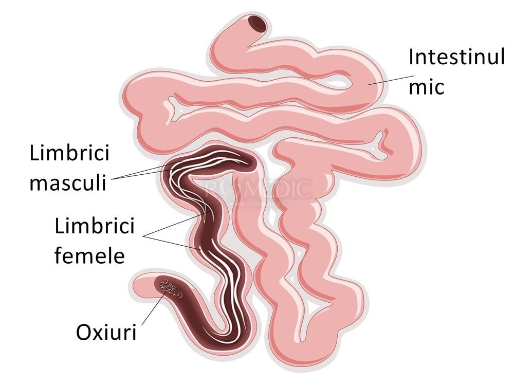 medicamente pt oxiuri papilloma virus home remedy