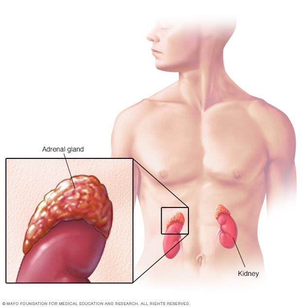 Prostata sfeșnic dovleac