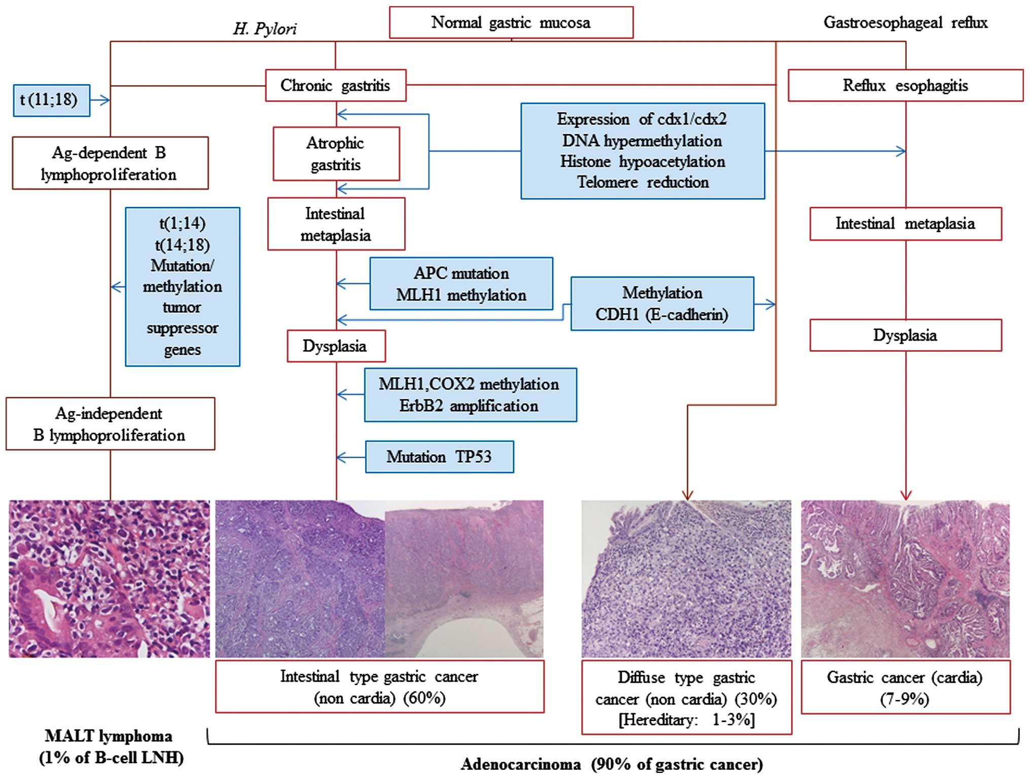 Cancer gastric (de stomac) - Tot ce trebuie să ştii   Cancer