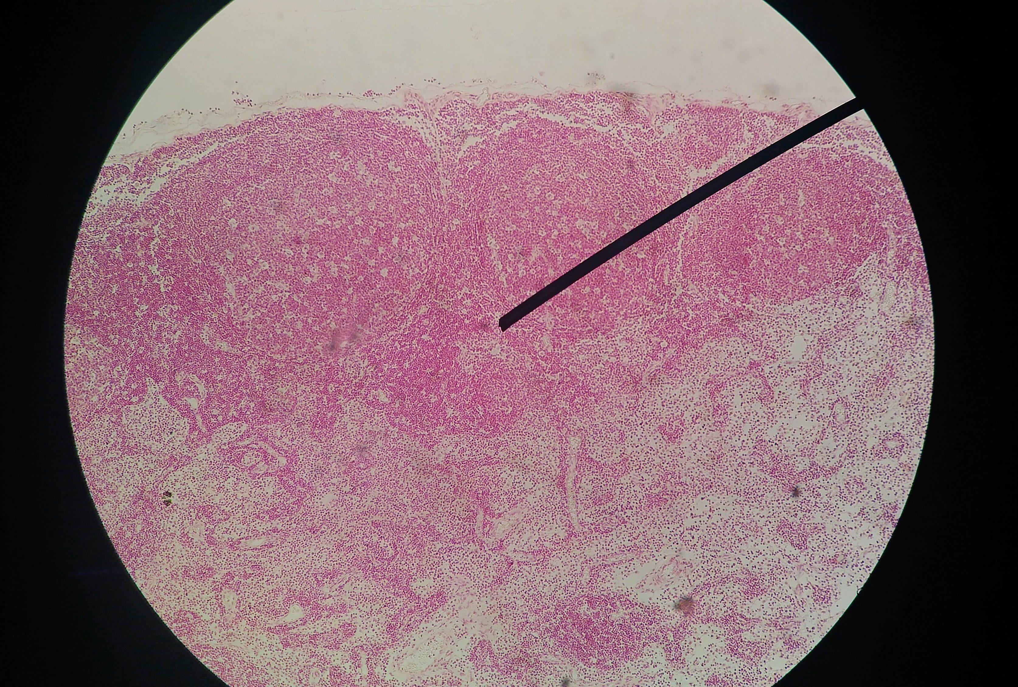 papillomavirus test positive