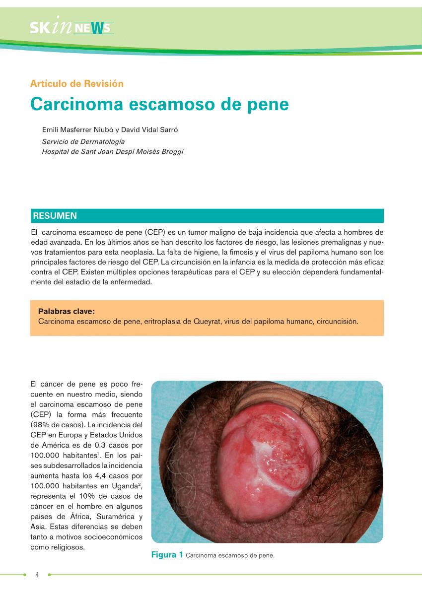 human papillomavirus biopsy cancer bucal operatie