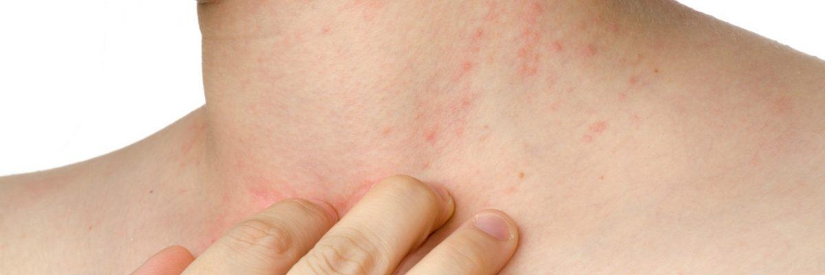 dermatite atopica cura